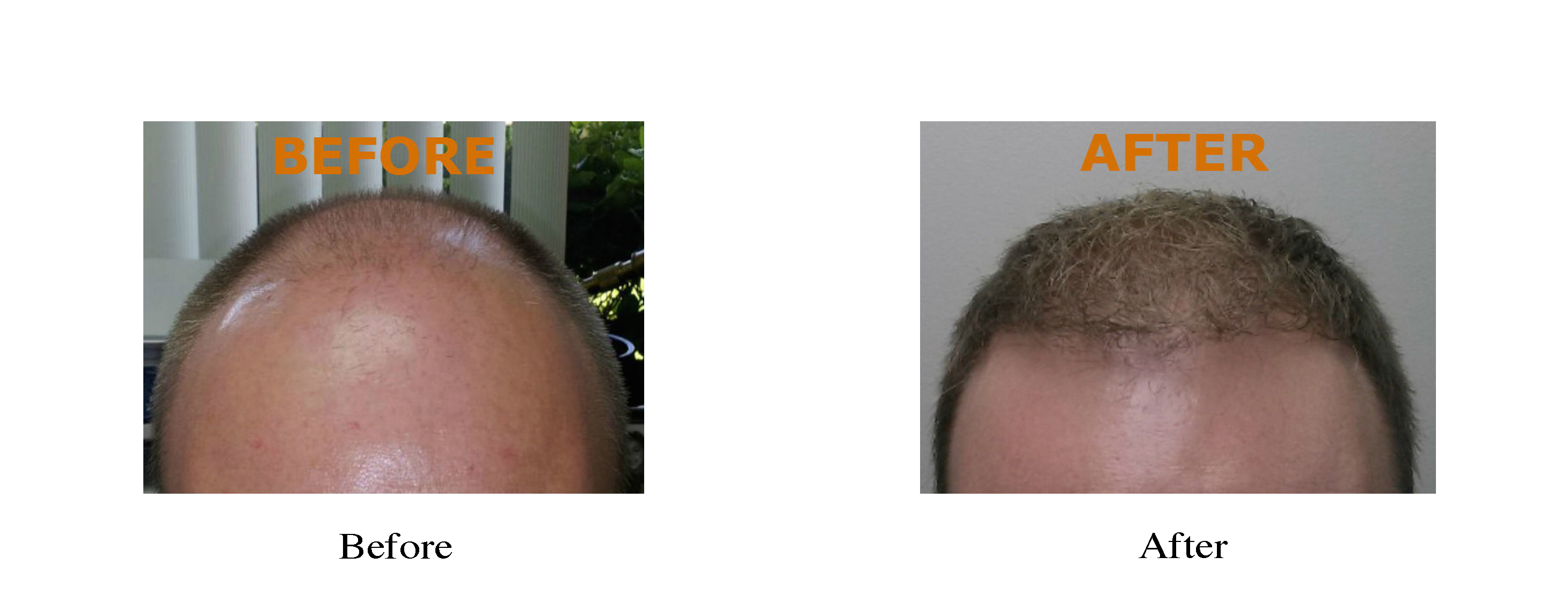NeoGraft Hair Restoration - Tri-Cities - Kennewick, Pasco, and